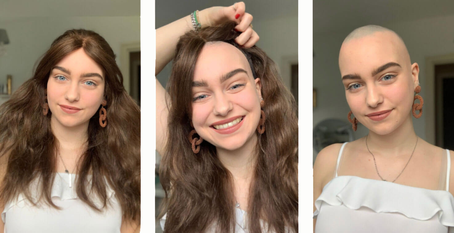 Alopecian Girl Boss